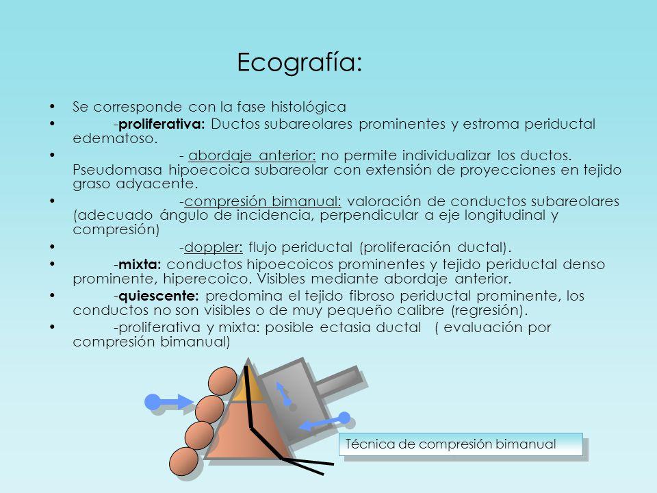 Técnica de compresión bimanual Ecografía: Se corresponde con la fase histológica - proliferativa: Ductos subareolares prominentes y estroma periductal edematoso.