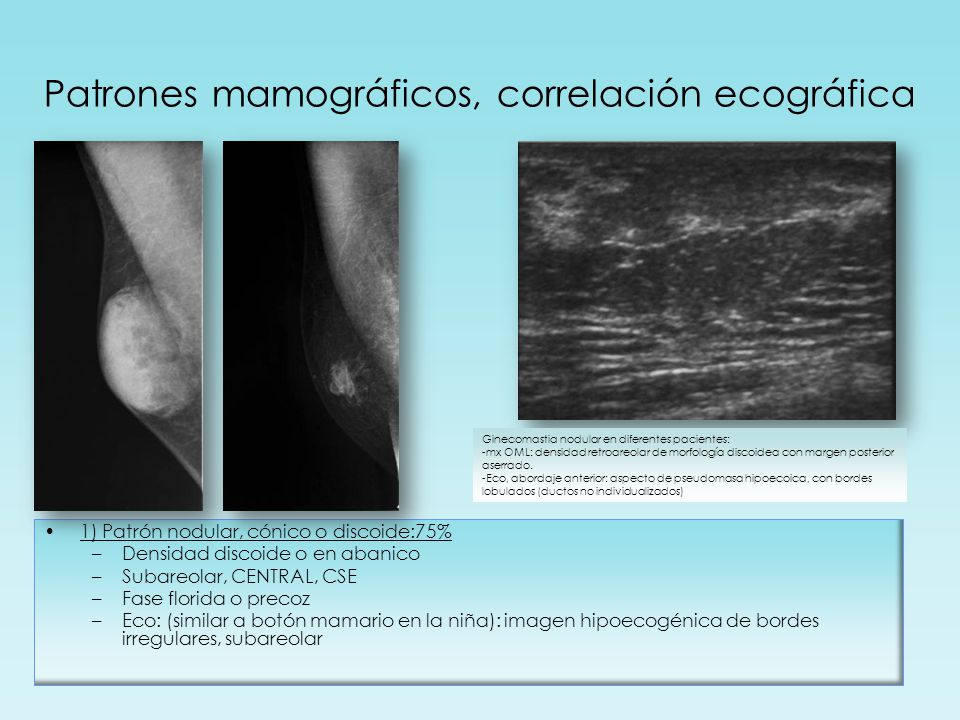 Patrones mamográficos, correlación ecográfica 1) Patrón nodular, cónico o discoide:75% –Densidad discoide o en abanico –Subareolar, CENTRAL, CSE –Fase
