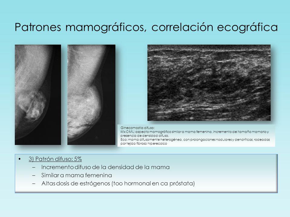 Patrones mamográficos, correlación ecográfica 3) Patrón difuso: 5% –Incremento difuso de la densidad de la mama –Similar a mama femenina –Altas dosis