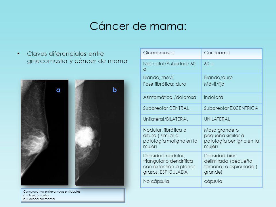 Cáncer de mama: Claves diferenciales entre ginecomastia y cáncer de mama GinecomastiaCarcinoma Neonatal/Pubertad/ 60 a 60 a Blando, móvil Fase fibróti