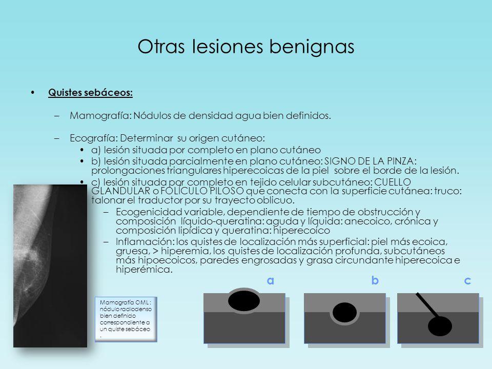 Otras lesiones benignas Quistes sebáceos: –Mamografía: Nódulos de densidad agua bien definidos.