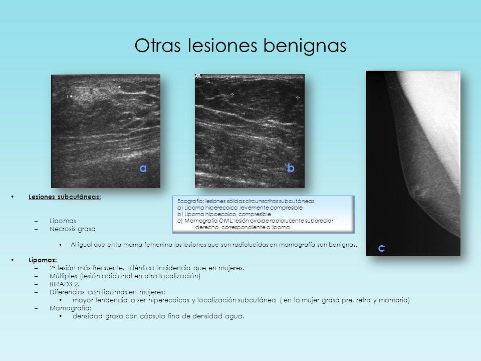 Otras lesiones benignas Lesiones subcutáneas: –Lipomas –Necrosis grasa Al igual que en la mama femenina las lesiones que son radiolucidas en mamografía son benignas.