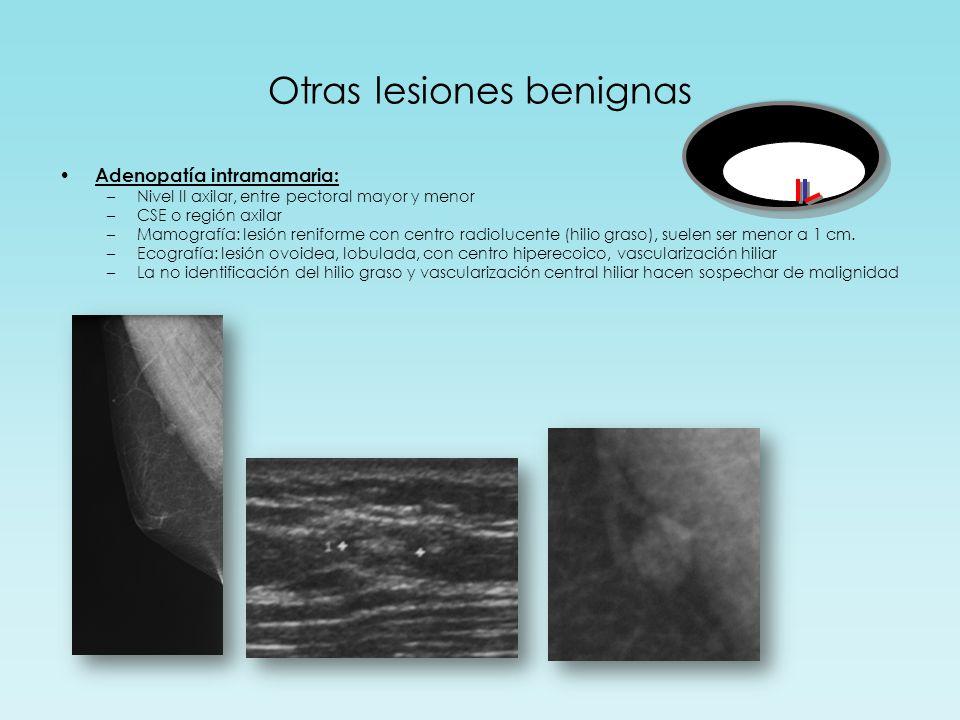 Otras lesiones benignas Adenopatía intramamaria: –Nivel II axilar, entre pectoral mayor y menor –CSE o región axilar –Mamografía: lesión reniforme con centro radiolucente (hilio graso), suelen ser menor a 1 cm.