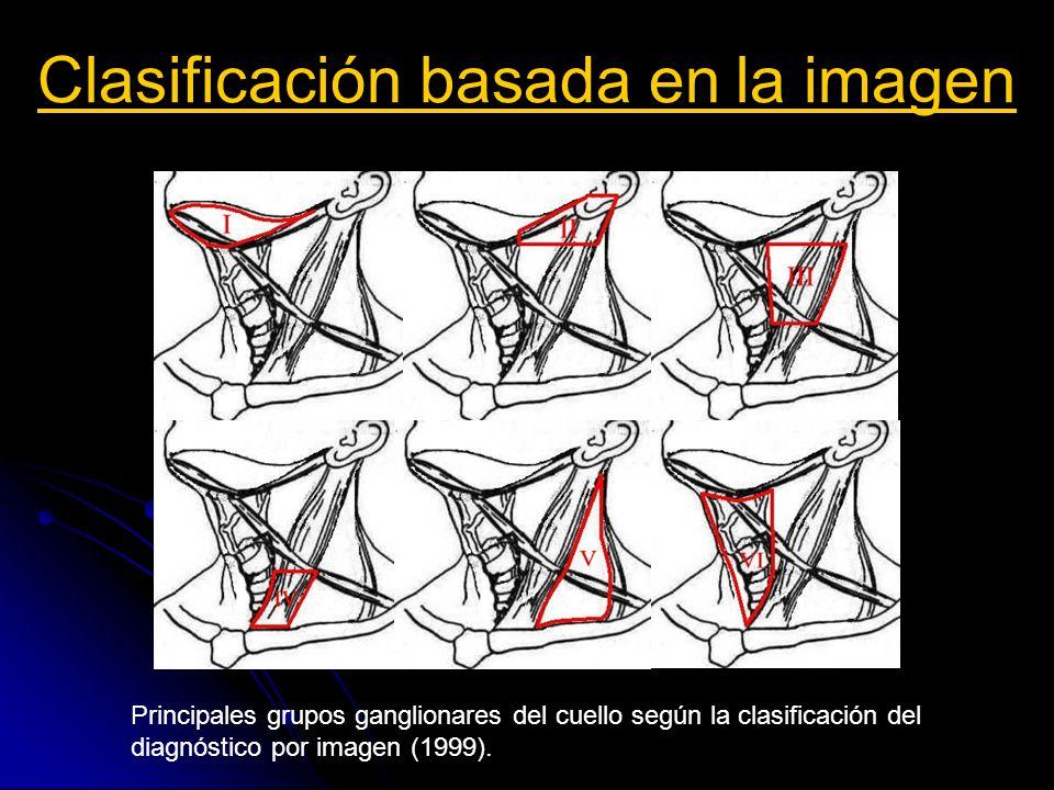 Clasificación basada en la imagen Nivel I Ia: Ganglios submentonianos: Desde el borde medial del vientre anterior Desde el borde medial del vientre anterior del músculo digástrico a la línea media.