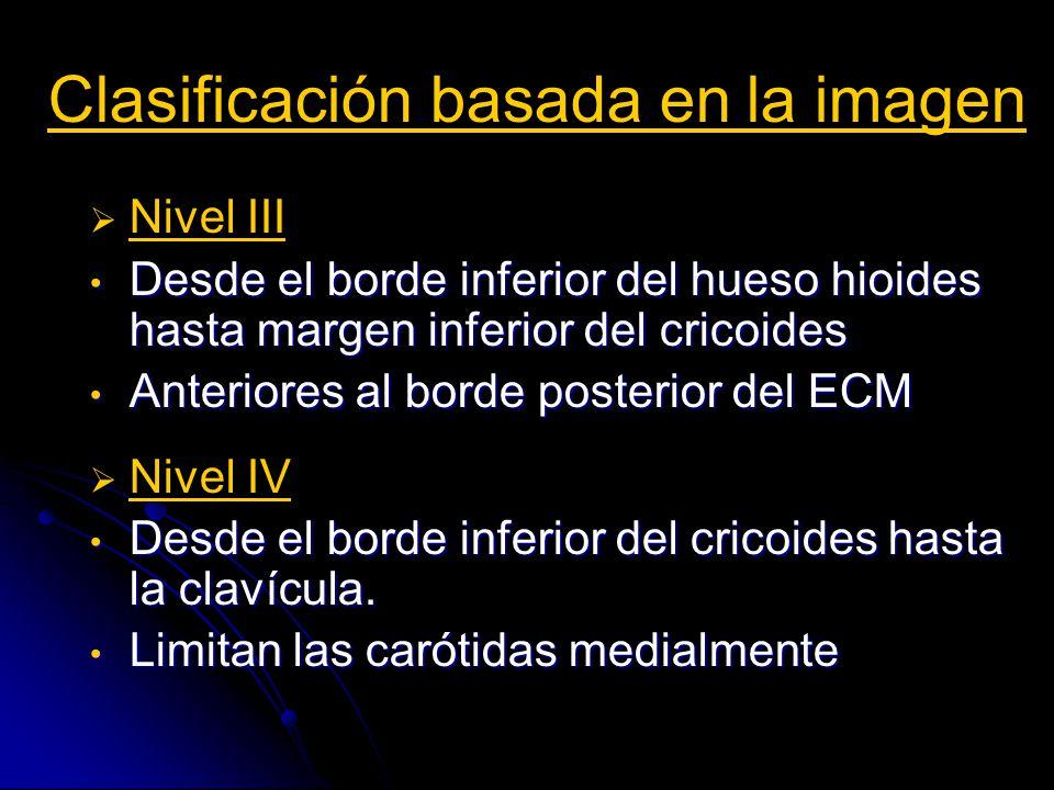 Manejo del ganglio cervical El 20% de las metástasis ganglionares son indetectables por imagen y por exploración física.
