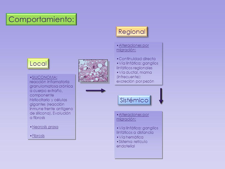 Local Regional Sistémico SILICONOMA: reacción inflamatoria granulomatosa crónica a cuerpo extraño, componente histiocitario y células gigantes (reacci