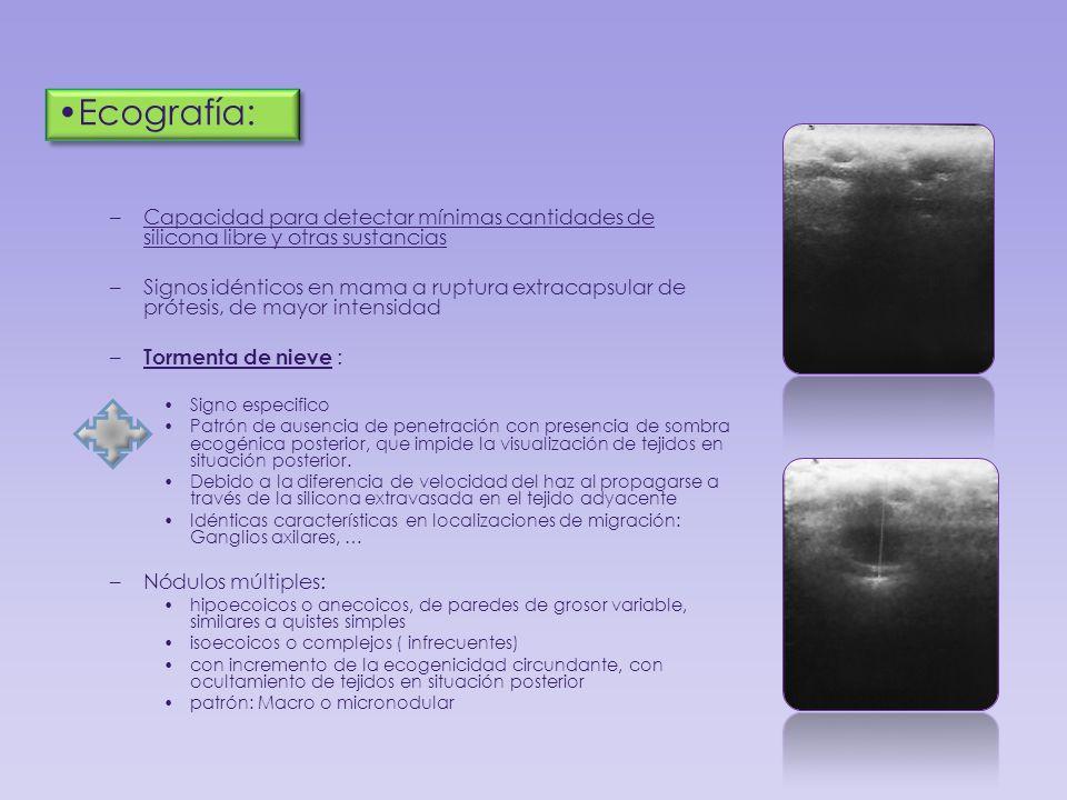 –Capacidad para detectar mínimas cantidades de silicona libre y otras sustancias –Signos idénticos en mama a ruptura extracapsular de prótesis, de may