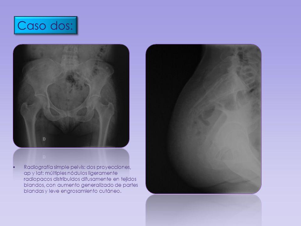 Radiografía simple pelvis: dos proyecciones, ap y lat: múltiples nódulos ligeramente radiopacos distribuidos difusamente en tejidos blandos, con aumen