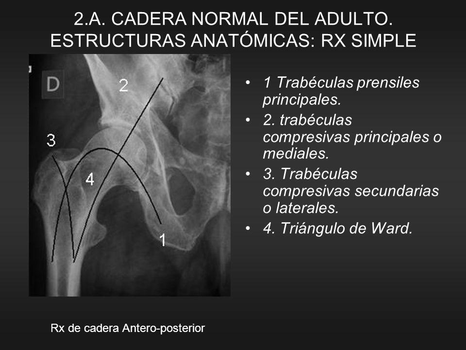 1 Trabéculas prensiles principales. 2. trabéculas compresivas principales o mediales. 3. Trabéculas compresivas secundarias o laterales. 4. Triángulo