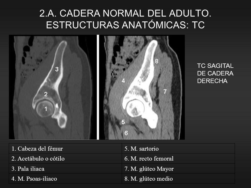 TC SAGITAL DE CADERA DERECHA 1. Cabeza del fémur5. M. sartorio 2. Acetábulo o cótilo6. M. recto femoral 3. Pala iliaca7. M. glúteo Mayor 4. M. Psoas-i