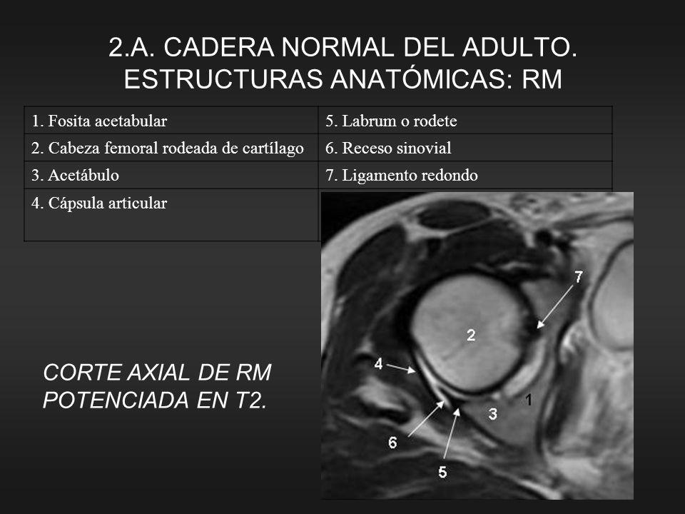CORTE AXIAL DE RM POTENCIADA EN T2. 1. Fosita acetabular5. Labrum o rodete 2. Cabeza femoral rodeada de cartílago6. Receso sinovial 3. Acetábulo7. Lig