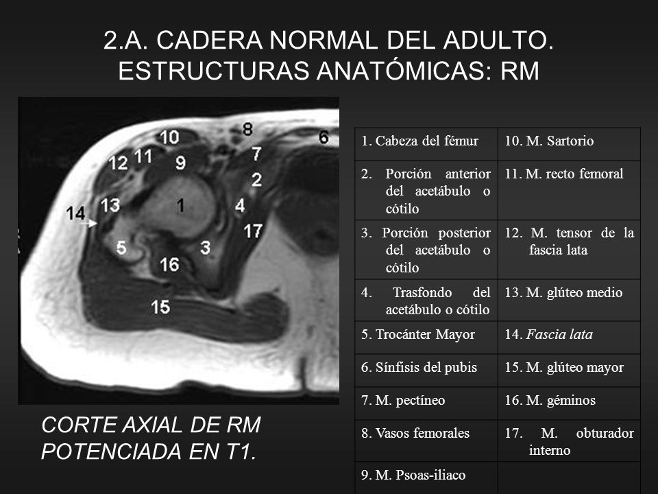 1. Cabeza del fémur10. M. Sartorio 2. Porción anterior del acetábulo o cótilo 11. M. recto femoral 3. Porción posterior del acetábulo o cótilo 12. M.