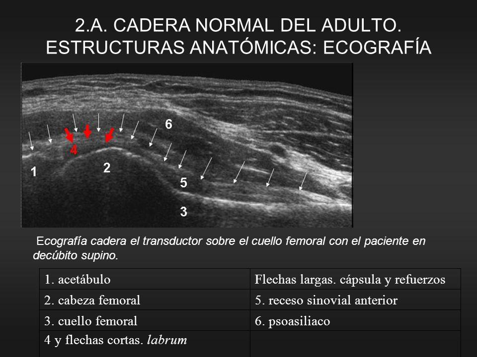 1. acetábuloFlechas largas. cápsula y refuerzos 2. cabeza femoral5. receso sinovial anterior 3. cuello femoral6. psoasiliaco 4 y flechas cortas. labru