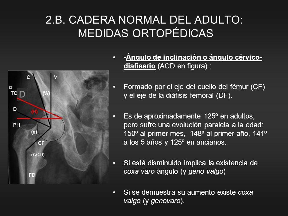 2.B. CADERA NORMAL DEL ADULTO: MEDIDAS ORTOPÉDICAS -Ángulo de inclinación o ángulo cérvico- diafisario (ACD en figura) : Formado por el eje del cuello