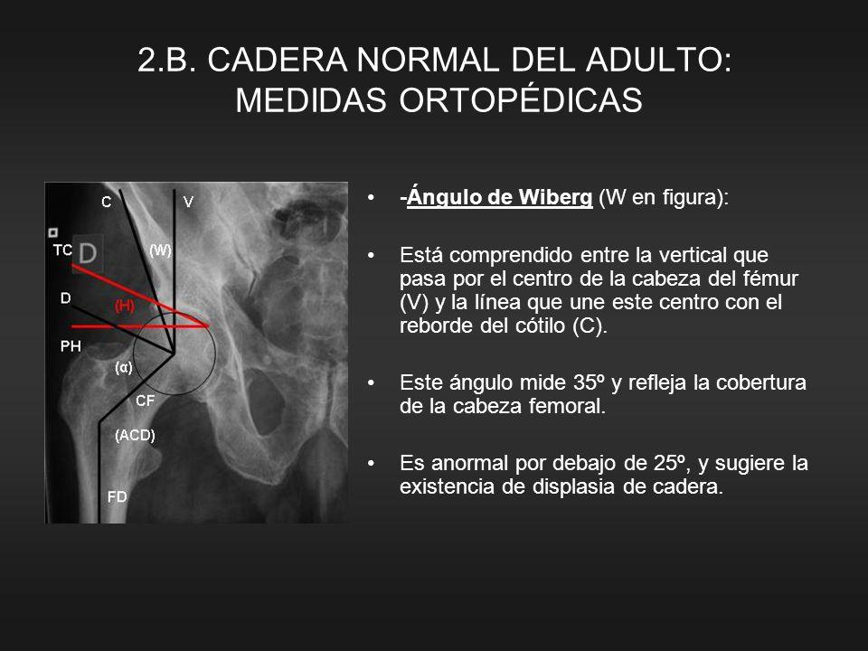 -Ángulo de Wiberg (W en figura): Está comprendido entre la vertical que pasa por el centro de la cabeza del fémur (V) y la línea que une este centro con el reborde del cótilo (C).