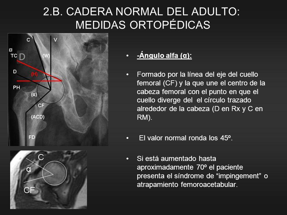 -Ángulo alfa (α): Formado por la línea del eje del cuello femoral (CF) y la que une el centro de la cabeza femoral con el punto en que el cuello diver