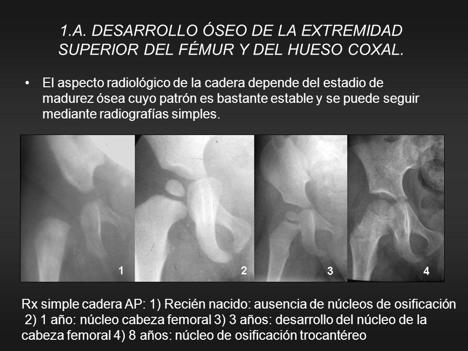 1.A. DESARROLLO ÓSEO DE LA EXTREMIDAD SUPERIOR DEL FÉMUR Y DEL HUESO COXAL. El aspecto radiológico de la cadera depende del estadio de madurez ósea cu
