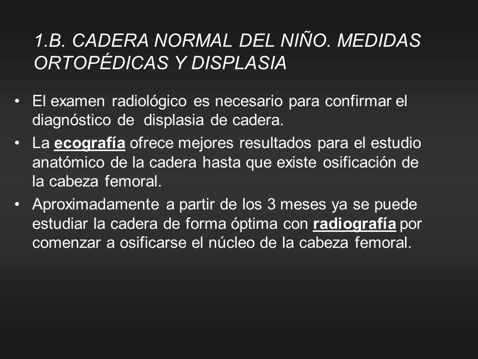 El examen radiológico es necesario para confirmar el diagnóstico de displasia de cadera. La ecografía ofrece mejores resultados para el estudio anatóm