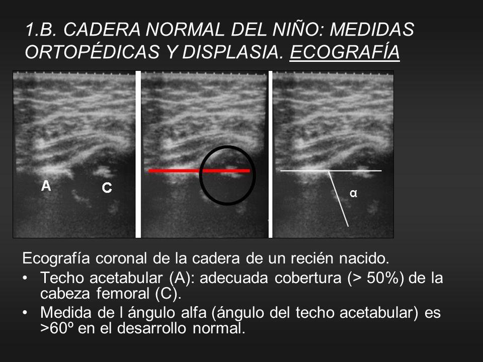 Ecografía coronal de la cadera de un recién nacido. Techo acetabular (A): adecuada cobertura (> 50%) de la cabeza femoral (C). Medida de l ángulo alfa