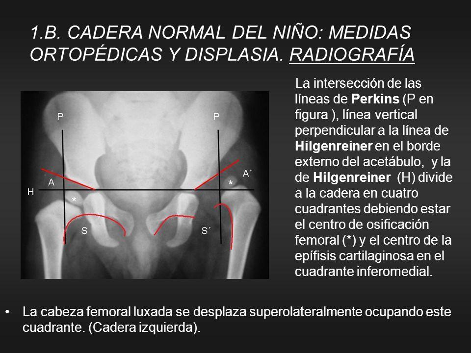 La cabeza femoral luxada se desplaza superolateralmente ocupando este cuadrante. (Cadera izquierda). 1.B. CADERA NORMAL DEL NIÑO: MEDIDAS ORTOPÉDICAS