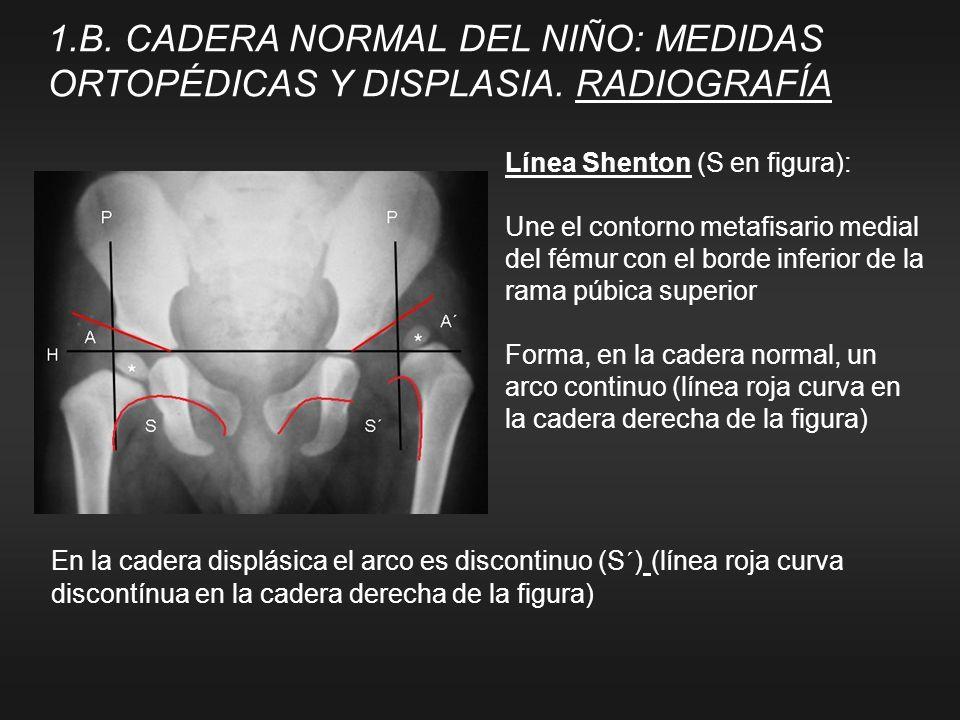 Línea Shenton (S en figura): Une el contorno metafisario medial del fémur con el borde inferior de la rama púbica superior Forma, en la cadera normal,