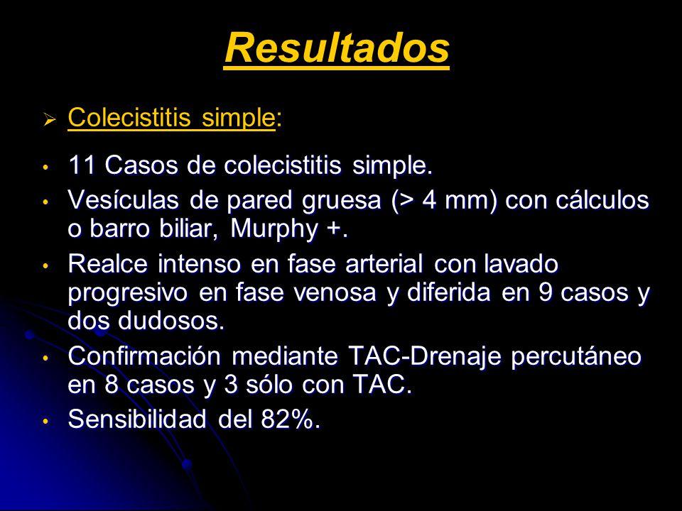 Colecistitis simple: 11 Casos de colecistitis simple. 11 Casos de colecistitis simple. Vesículas de pared gruesa (> 4 mm) con cálculos o barro biliar,