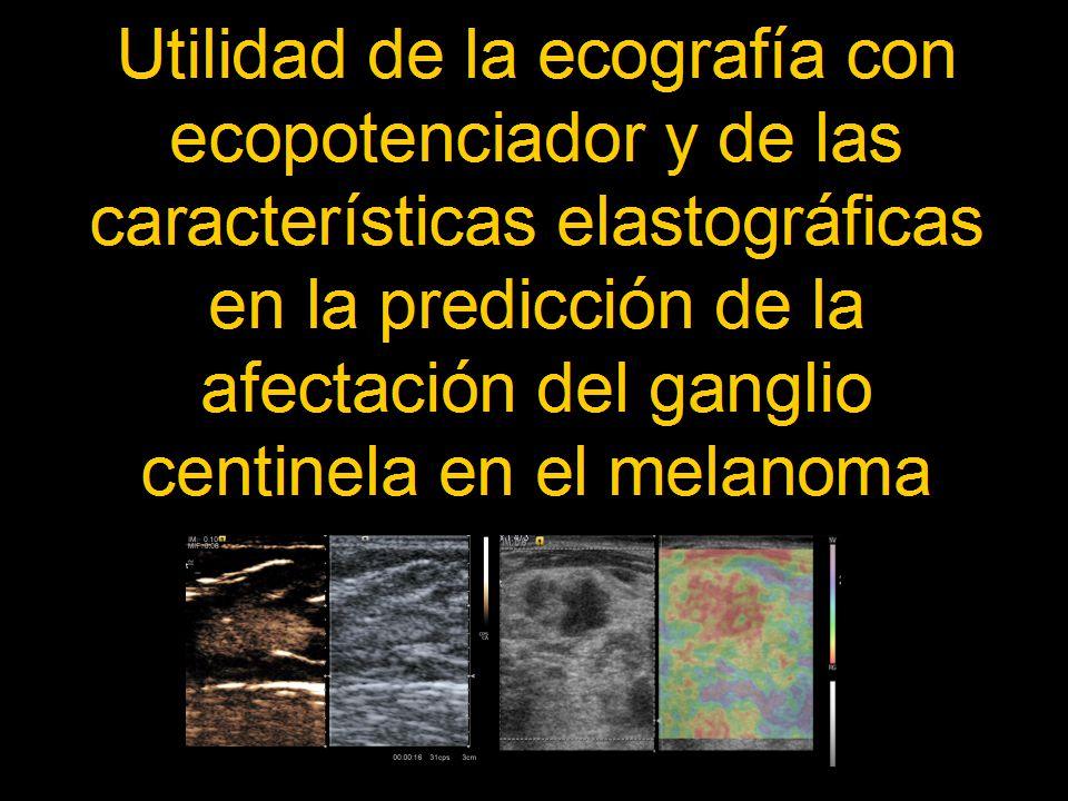 Objetivos Desarrollar un nuevo procedimiento diagnóstico, la ecografía con ecopotenciador y usar las características elastográficas para evaluar su utilidad en la predicción de la afectación del ganglio centinela en el melanoma.