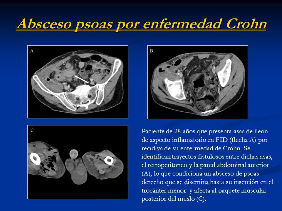 Absceso psoas por enfermedad Crohn Paciente de 28 años que presenta asas de íleon de aspecto inflamatorio en FID (flecha A) por recidiva de su enferme