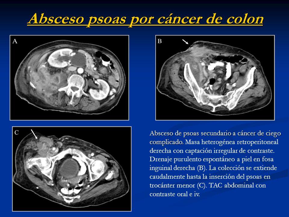 Absceso psoas por cáncer de colon Absceso de psoas secundario a cáncer deciego complicado. Absceso de psoas secundario a cáncer de ciego complicado. M