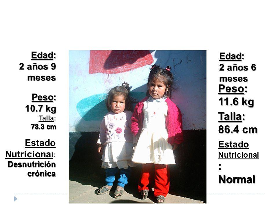Edad: 2 años 9 meses Estado Nutriciona l: Desnutrición crónica Estado Nutricional :Normal Edad: 2 años 6 meses Peso: 10.7 kg Peso: 11.6 kg Talla: 78.3 cm Talla: 86.4 cm