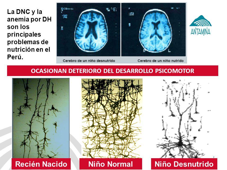 Antamina: Título de presentación2 OCASIONAN DETERIORO DEL DESARROLLO PSICOMOTOR Niño DesnutridoNiño NormalRecién Nacido La DNC y la anemia por DH son