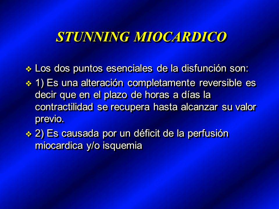 STUNNING MIOCARDICO Los dos puntos esenciales de la disfunción son: Los dos puntos esenciales de la disfunción son: 1) Es una alteración completamente
