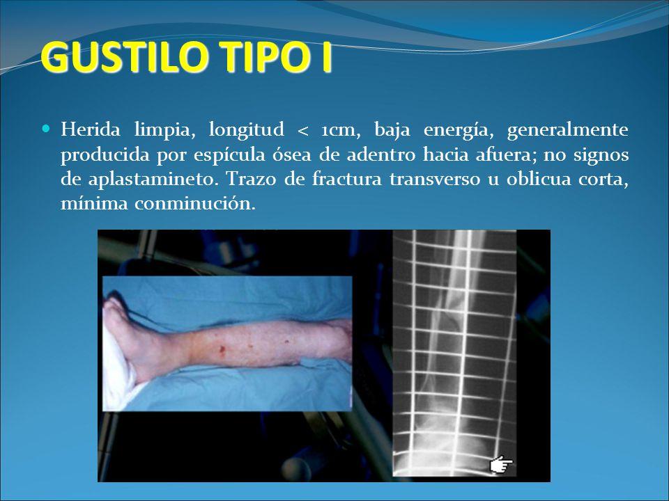 GUSTILO TIPO I Herida limpia, longitud < 1cm, baja energía, generalmente producida por espícula ósea de adentro hacia afuera; no signos de aplastamine