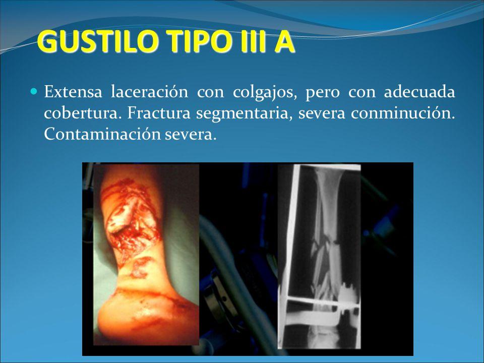 GUSTILO TIPO III A Extensa laceración con colgajos, pero con adecuada cobertura. Fractura segmentaria, severa conminución. Contaminación severa.