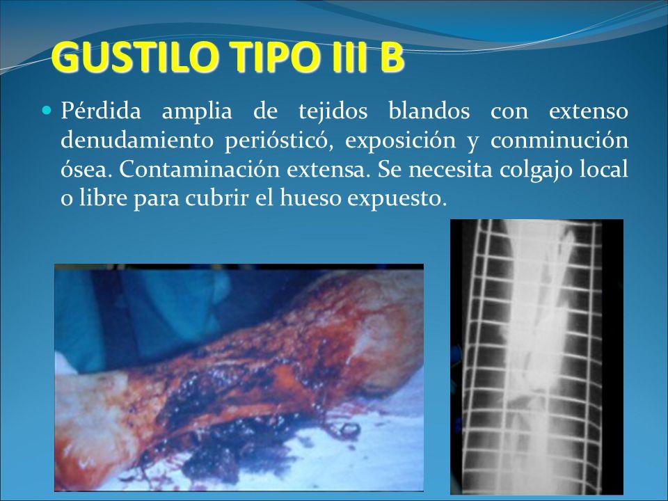 GUSTILO TIPO III B Pérdida amplia de tejidos blandos con extenso denudamiento periósticó, exposición y conminución ósea. Contaminación extensa. Se nec