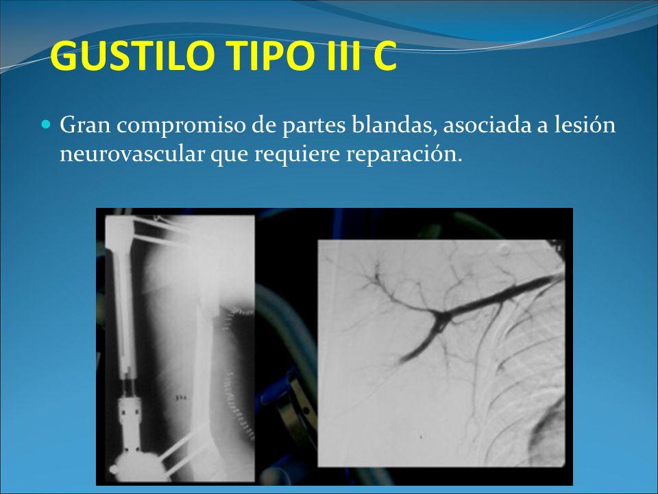 GUSTILO TIPO III C Gran compromiso de partes blandas, asociada a lesión neurovascular que requiere reparación.