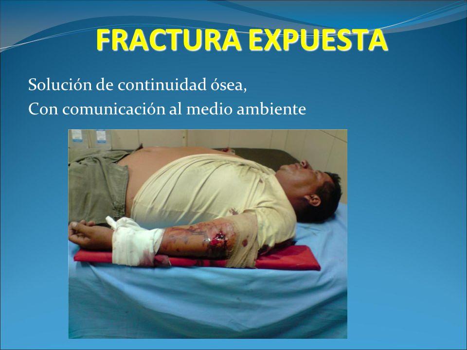 FRACTURA EXPUESTA Solución de continuidad ósea, Con comunicación al medio ambiente