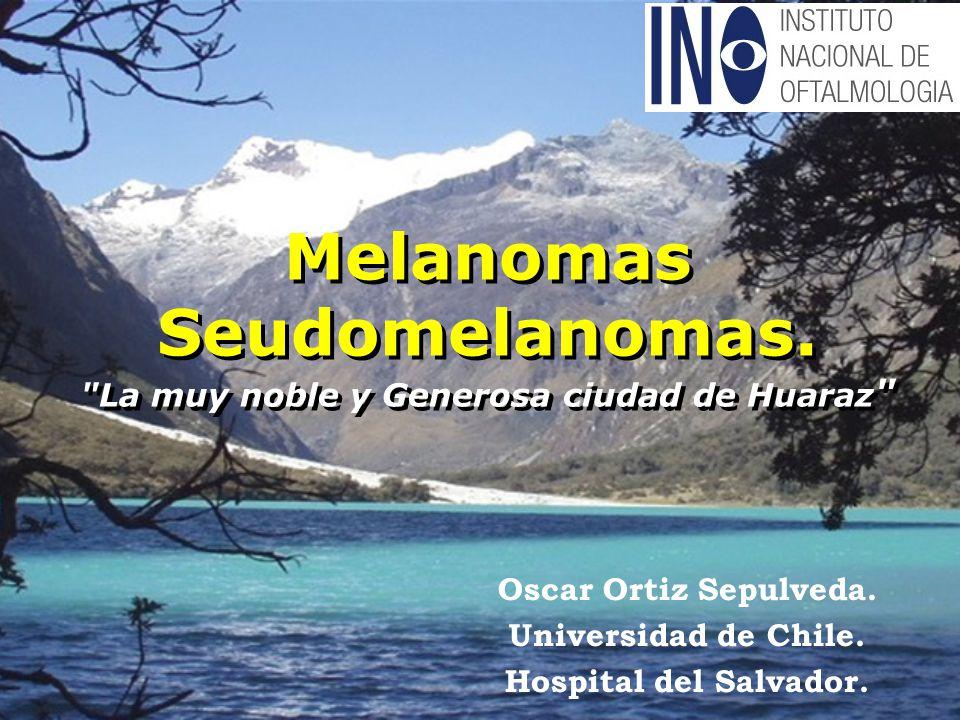 Melanomas Seudomelanomas. La muy noble y Generosa ciudad de Huaraz Oscar Ortiz Sepulveda.
