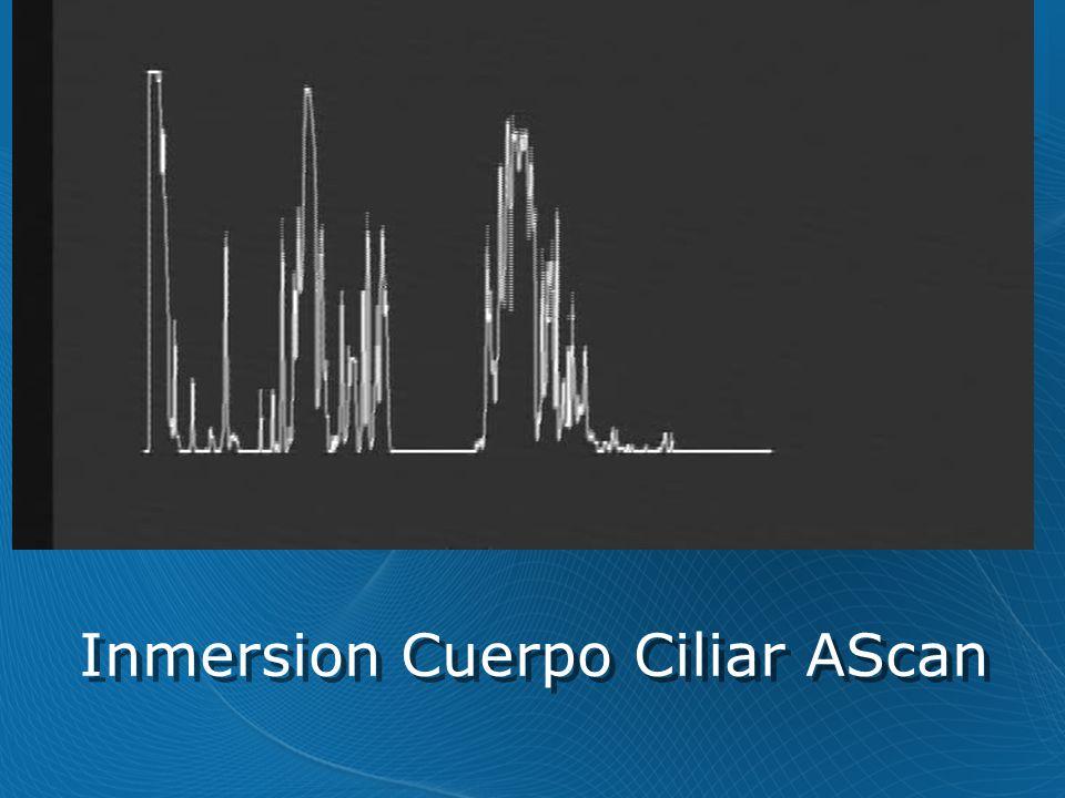 Inmersion Cuerpo Ciliar AScan