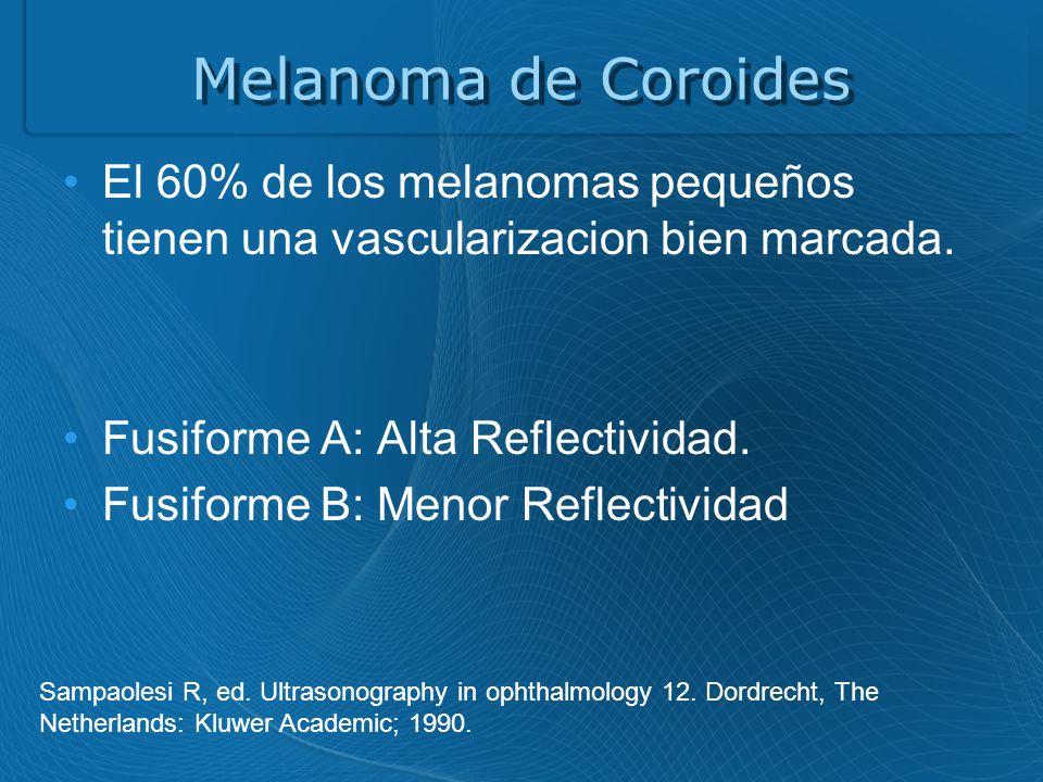 Melanoma de Coroides El 60% de los melanomas pequeños tienen una vascularizacion bien marcada.