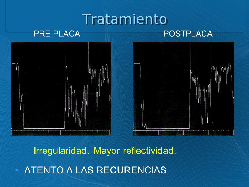 Tratamiento ATENTO A LAS RECURENCIAS PRE PLACAPOSTPLACA Irregularidad. Mayor reflectividad.