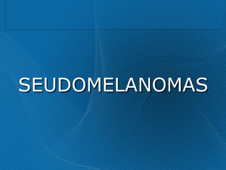 SEUDOMELANOMAS