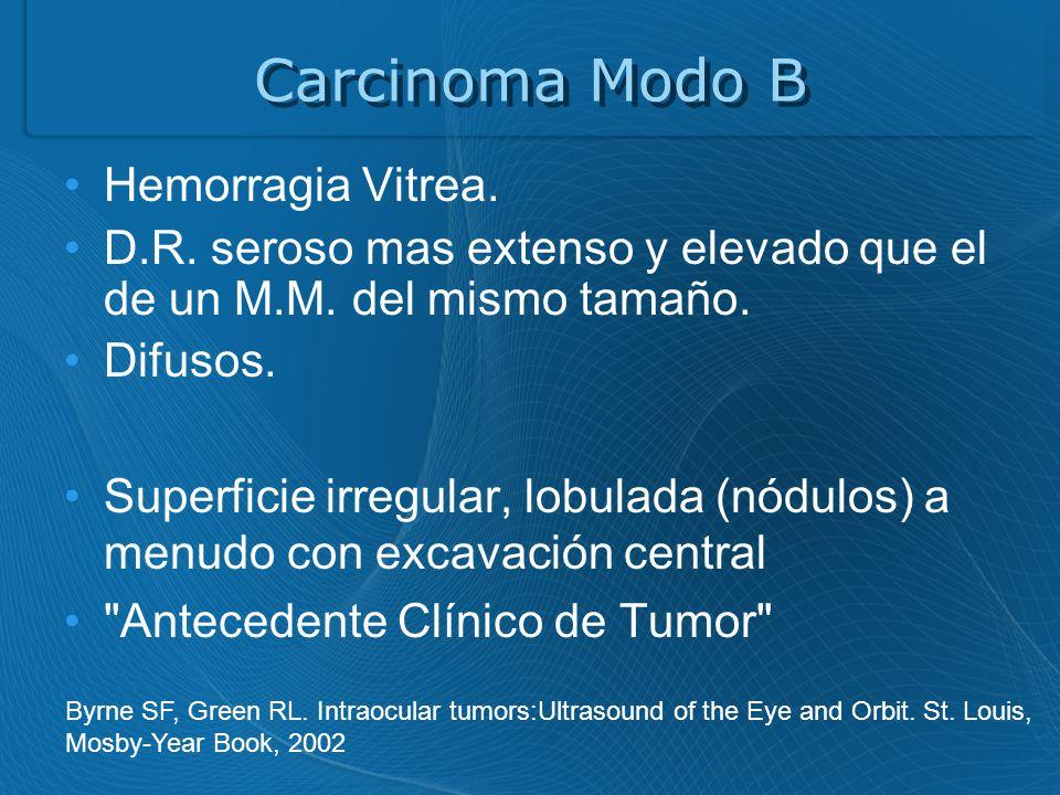 Carcinoma Modo B Hemorragia Vitrea.D.R. seroso mas extenso y elevado que el de un M.M.