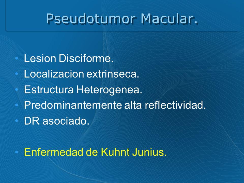 Pseudotumor Macular.Lesion Disciforme. Localizacion extrinseca.