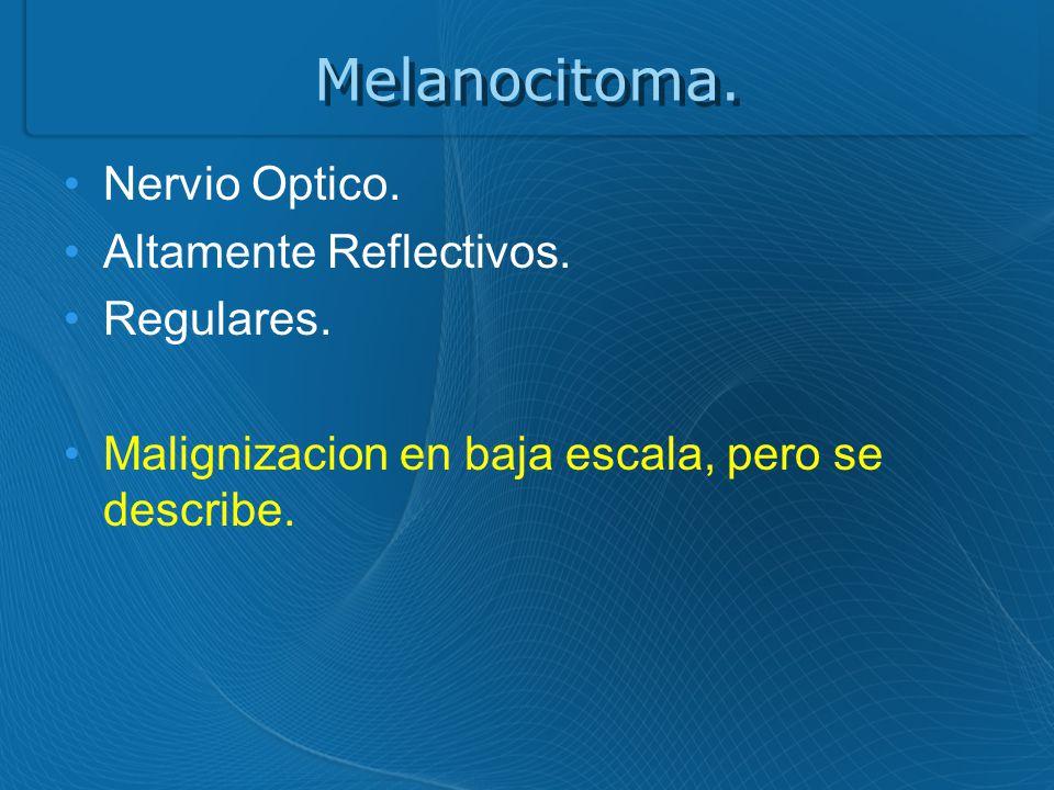 Melanocitoma.Nervio Optico. Altamente Reflectivos.