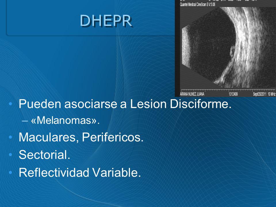 DHEPR Pueden asociarse a Lesion Disciforme.–«Melanomas».