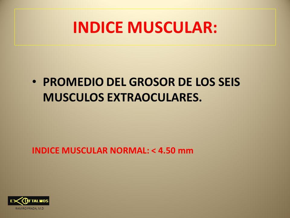 INDICE MUSCULAR: PROMEDIO DEL GROSOR DE LOS SEIS MUSCULOS EXTRAOCULARES. INDICE MUSCULAR NORMAL: < 4.50 mm RAMIRO PRADA, M.D