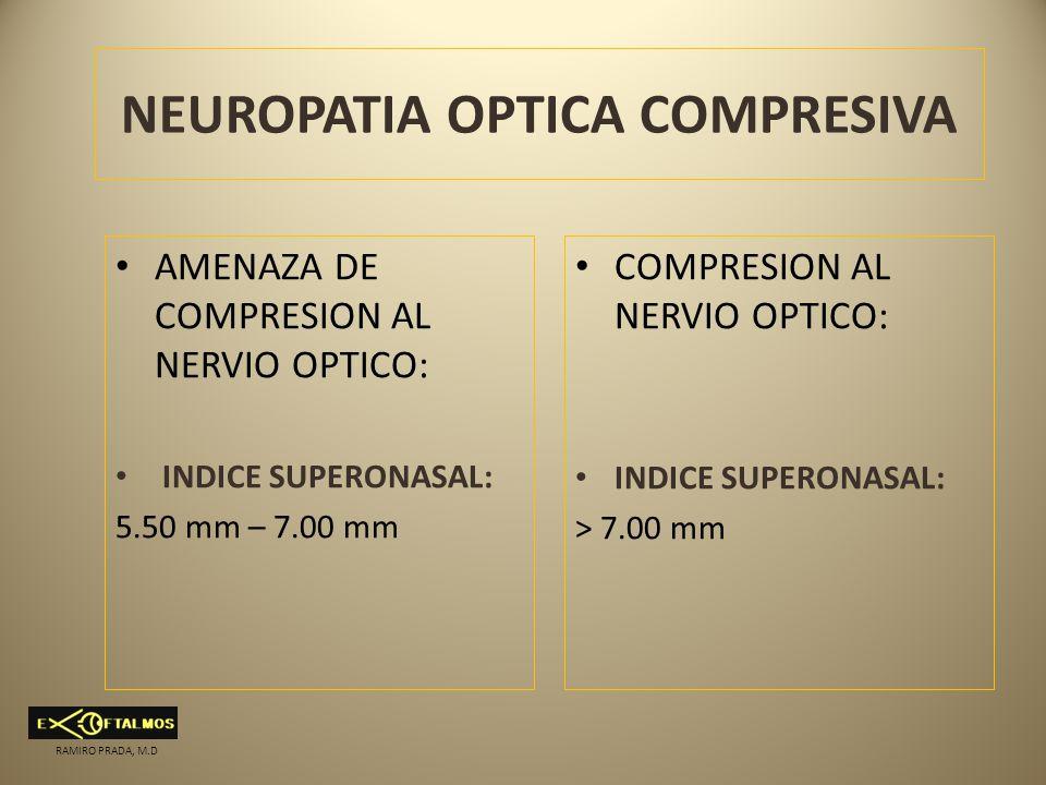NEUROPATIA OPTICA COMPRESIVA AMENAZA DE COMPRESION AL NERVIO OPTICO: INDICE SUPERONASAL: 5.50 mm – 7.00 mm COMPRESION AL NERVIO OPTICO: INDICE SUPERON