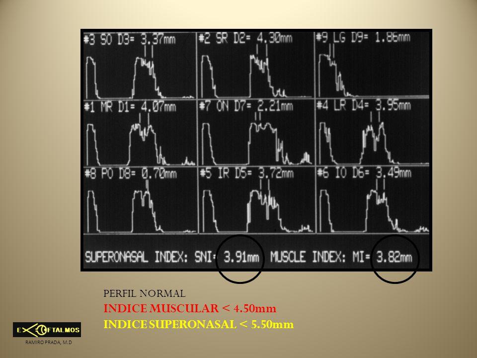 PERFIL NORMAL INDICE MUSCULAR < 4.50mm INDICE SUPERONASAL < 5.50mm RAMIRO PRADA, M.D