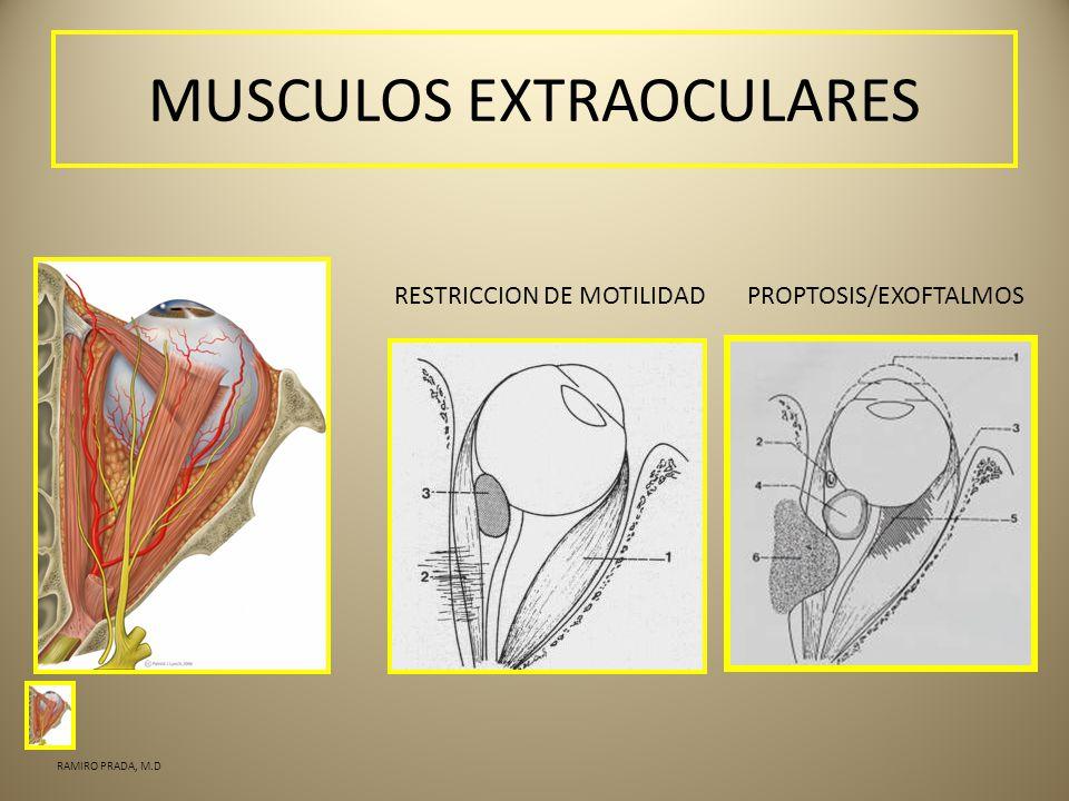 MUSCULOS EXTRAOCULARES RESTRICCION DE MOTILIDADPROPTOSIS/EXOFTALMOS RAMIRO PRADA, M.D